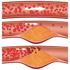 内臓脂肪が溜まった血管